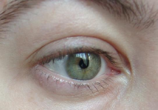 Die Wassergeschwulst des Auges von der Beschädigung