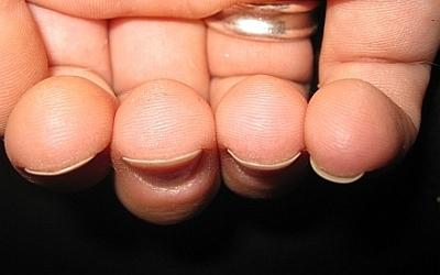 aufhören nagelhaut kauen