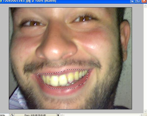 Diş Beyazlatma[photoshop]